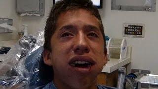 Alex After Wisdom Teeth Removal
