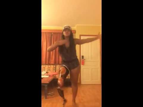Girl Wearing Prosthetic Leg Shows Off Dance Moves